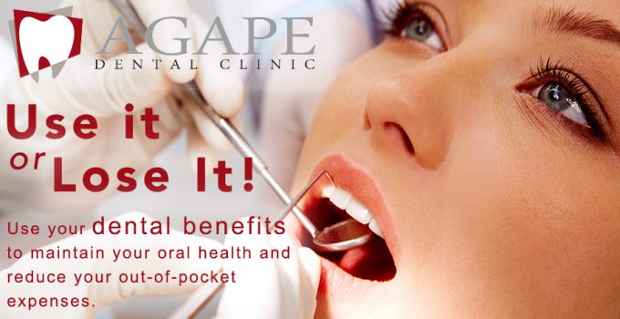 use it or lose it! Use your dental benefits to maintain your oral health
