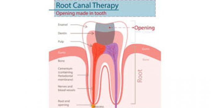 Diagram showing root canal therapy