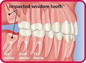 Diagram showing impacted wisdom teeth