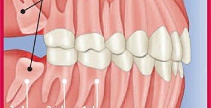 Diagram showing impacted wisdom teeth