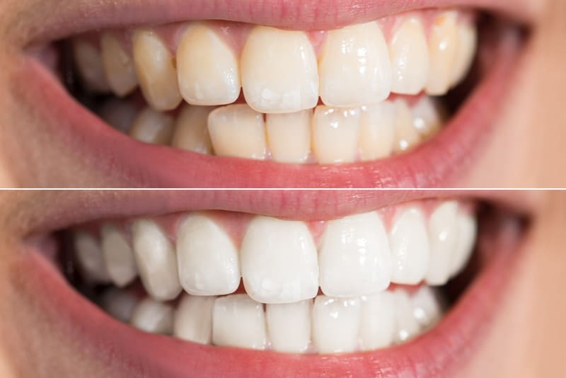 Before and after image of patient after teeth whitening procedure